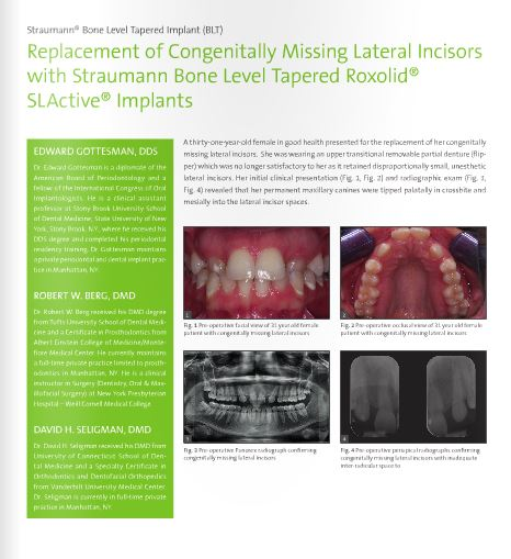 Replacement of Congenitally Missing Lateral Incisors with Straumann BLT Roxolid SLA Implants