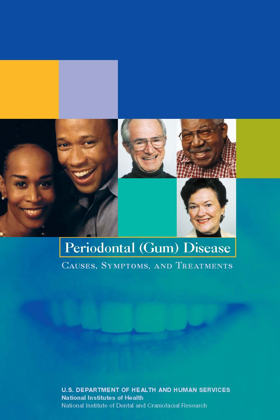 Periodontal (Gum) Disease: Causes, Symptoms and Treatments