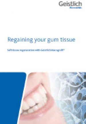 Regaining your gum tissue