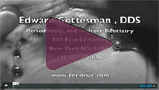 CAD/CAM Implant Surgery<br /><font color=
