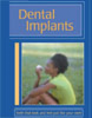 Dental Implants - AAP Brochure