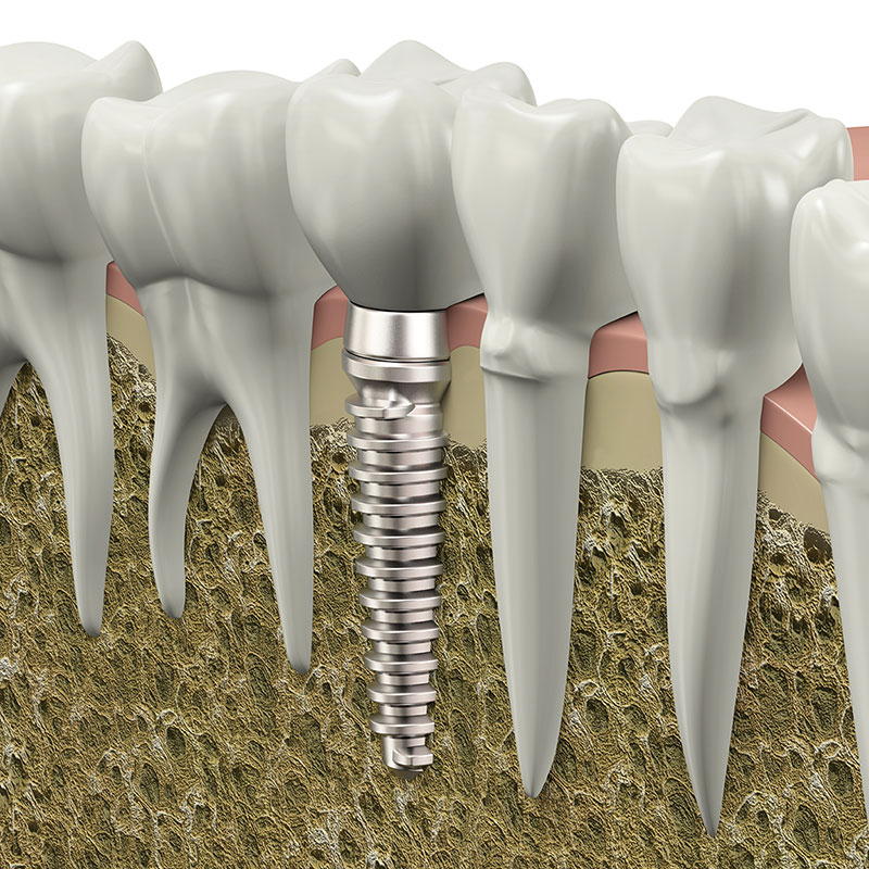 dental implants Manhattan