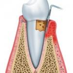periodontist Manhattan