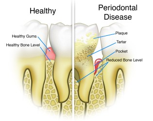 periodontist upper east side