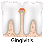 gum-disease-Manhattan