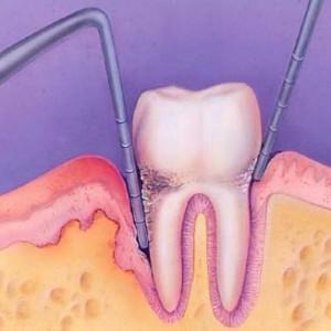 gum disease Upper East Side