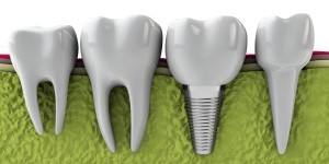 Manhattan periodontist