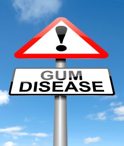 gum disease treatment Manhattan