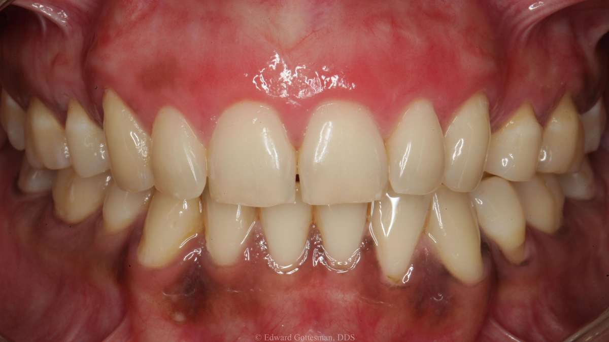 after gum bleaching