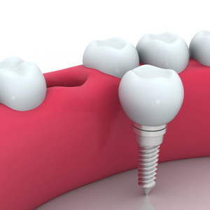 dental implants Manhattan