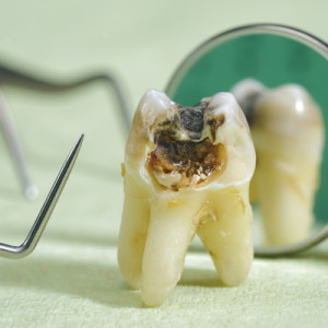 Tooth suffering from tooth decay.