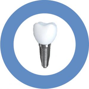 Don't let diabetes stop your implant treatment.